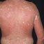 23. Pitiriasis versicolor en el cuerpo foto