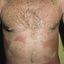 231. Pitiriasis versicolor en el cuerpo foto