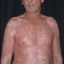 24. Pitiriasis versicolor en el cuerpo foto