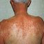 26. Pitiriasis versicolor en el cuerpo foto