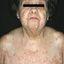 28. Pitiriasis versicolor en el cuerpo foto