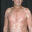 3. Pitiriasis versicolor en el cuerpo foto