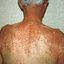 4. Pitiriasis versicolor en el cuerpo foto