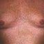 42. Pitiriasis versicolor en el cuerpo foto