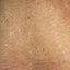 56. Pitiriasis versicolor en el cuerpo foto