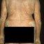 6. Pitiriasis versicolor en el cuerpo foto