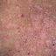 66. Pitiriasis versicolor en el cuerpo foto