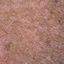 73. Pitiriasis versicolor en el cuerpo foto