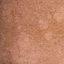 74. Pitiriasis versicolor en el cuerpo foto