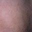 75. Pitiriasis versicolor en el cuerpo foto