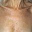 78. Pitiriasis versicolor en el cuerpo foto