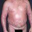 8. Pitiriasis versicolor en el cuerpo foto