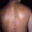 83. Pitiriasis versicolor en el cuerpo foto