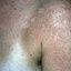 85. Pitiriasis versicolor en el cuerpo foto