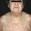 63. Enfermedad de Devergie foto