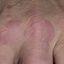 2. Granuloma anillado foto