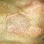 45. Granuloma anillado foto