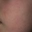 19. Queratosis folicular infantil foto
