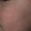 31. Queratosis folicular infantil foto