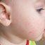 50. Queratosis folicular infantil foto