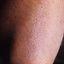 54. Queratosis folicular infantil foto