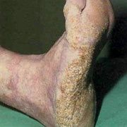 Queratosis del pie