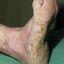 1. Queratosis del pie foto