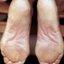 2. Queratosis del pie foto