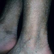 Queratosis en las piernas