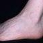 11. Queratosis en las piernas foto