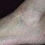 13. Queratosis en las piernas foto