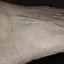 20. Queratosis en las piernas foto