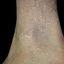 24. Queratosis en las piernas foto