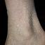 25. Queratosis en las piernas foto