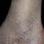 3. Queratosis en las piernas foto