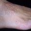 36. Queratosis en las piernas foto