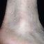 39. Queratosis en las piernas foto