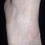 47. Queratosis en las piernas foto