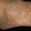 5. Queratosis en las piernas foto