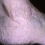 63. Queratosis en las piernas foto