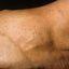 65. Queratosis en las piernas foto