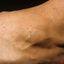 66. Queratosis en las piernas foto