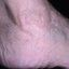 67. Queratosis en las piernas foto