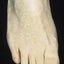68. Queratosis en las piernas foto