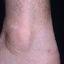 69. Queratosis en las piernas foto