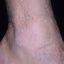 70. Queratosis en las piernas foto