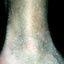 72. Queratosis en las piernas foto