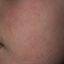 5. Queratosis en la cara foto
