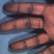 Queratodermia de las palmas