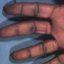 1. Queratodermia de las palmas foto